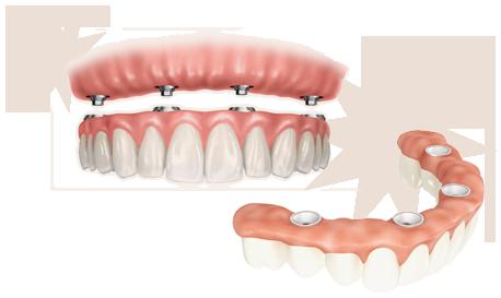Dentiers-Implantologie-Clinique_dentaire_Maguire